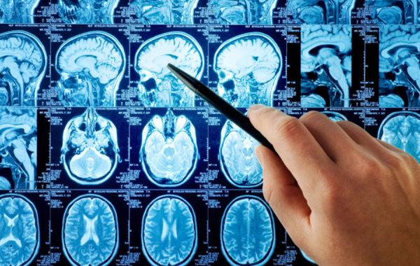 Неврологическое отделение ОНМК